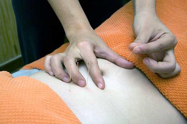 acupuntura beneficios